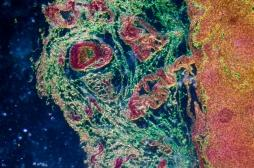 Lymphome diffus à grandes cellulesB : un nouveau traitement pour éviter la chimiothérapie