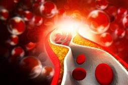 Maladies cardiovasculaires: il faudrait revoir les lignes directrices sur le