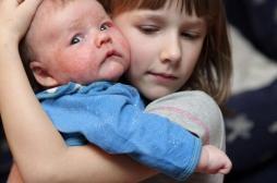 Eczéma infantile : une maman soigne son bébé avec une recette insolite !