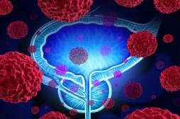 Cancer de la prostate : la cryoablation fait ses preuves