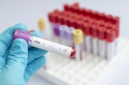 Inégalités salariales : l'association de lutte contre le sida AIDES fait grève