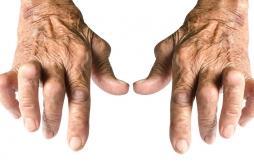 Une mortalité cardiovasculaire plus élevée chez les patients atteints d'arthrose