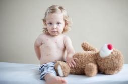 Rougeole : épidémie record en Europe avec 41 000 cas en quelques mois
