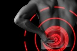 Sciatique: un nouvel examen pour mieux choisir le traitement des formes chroniques