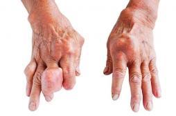 Acide urique : sa diminution réduit le risque cardiovasculaire et surtout rénal