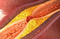 Athérosclérose: comment prévenir le risque d'artères obstruées?