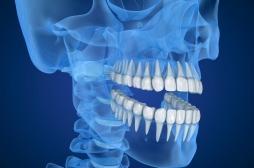 Douleur de la mâchoire à la mastication : le traitement est fonctionnel avant tout
