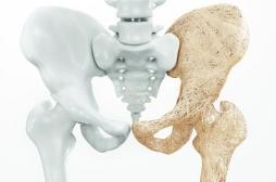 Une nouvelle molécule prévient les lésions de l'os provoquées par les corticoïdes
