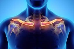 Douleurs de l'épaule : beaucoup trop de chirurgie et pas assez de preuves