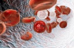 Anémie héréditaire : la thérapie génique révolutionne le traitement de la bêta-thalassémie