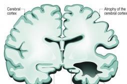 Alzheimer : la maladie s'installe chez les patients beaucoup plus tôt que ce que l'on pensait