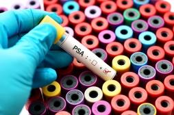 Cancer de la prostate: un nouveau traitement diminue de 59% le risque de décès