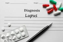 Lupus : un traitement potentiel donne des résultats encourageants