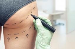 L'opération de chirurgie esthétique des fesses est la plus dangereuse