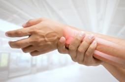Ostéoporose: 15% des patients interrompant leur traitement souffrent de fractures osseuses