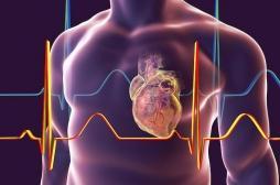 Fibrillation auriculaire : l'ablation par cathéter réduit les risques de décès et d'AVC