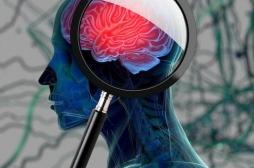 Le difficile combat des médicaments contre la maladie d'Alzheimer