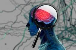 Alzheimer : le cholestérol pourrait être le précurseur de la dégénérescence cérébrale