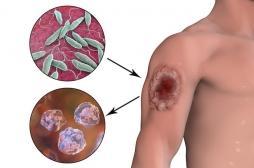 Leishmaniose : les méthodes naturelles marchent et pourraient éviter le recours aux médicaments