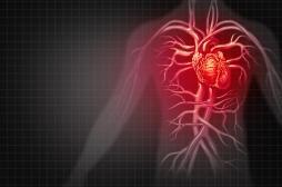 Les maladies inflammatoires des intestins augmentent le risque de crise cardiaque