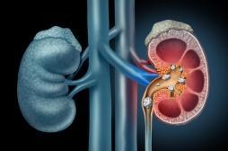 Calculs rénaux : 5 antibiotiques favorisent la lithiase urinaire