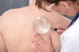 Cancer de la peau : un dépistage gratuit sera organisé du 20 au 24 mai