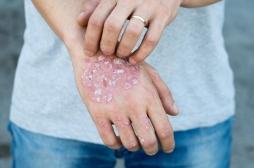 Psoriasis : le sondage qui illustre les idées fausses sur la maladie