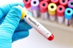 Hépatite C : les recommandations des hépatologues pour éradiquer la maladie d'ici à 2025