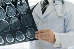 Médicament Androcur : on lui découvre huit tumeurs cérébrales après 10 ans de traitement