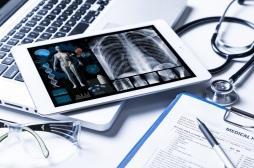 Cancer du poumon : Google crée un algorithme ultra-performant pour le détecter