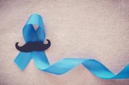 Cancer de la prostate : un nombre de partenaires sexuelles élevé augmente le risque