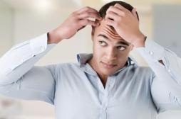 Alopécie : des chercheurs découvrent comment stimuler la repousse des cheveux
