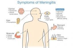 Méningite : une jeune femme de 20 ans décède, quels signes doivent alerter ?