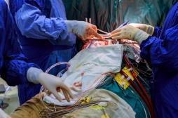 Coronavirus : aux Etats-Unis, une double greffe des poumons sauve une jeune patiente