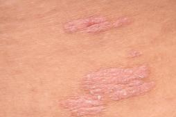 L'eczéma pourrait être causé par votre microbiote intestinal