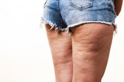 Crèmes anti-cellulite : UFC-Que Choisir dénonce l'inefficacité de 9 produits commercialisés