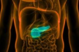 Cancer du pancréas : le taux de mortalité a augmenté dans toute l'Europe
