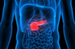 Décès de Bertrand-Kamal (Koh-Lanta) : quand faut-il dépister un cancer du pancréas ?