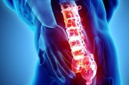 Ostéoporose : le traitement préventif des fractures débute trop tard