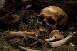 Tuberculose :  des squelettes humains découverts dans un jardin