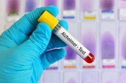 Alzheimer : un test sanguin fiable pour dépister précocement la maladie