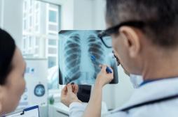 L'échographie pulmonaire, nouvel outil pour déterminer l'état des patients atteints du coronavirus