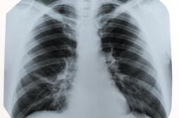 Une femme développe un cancer du poumon après le don d'organe d'une grosse fumeuse