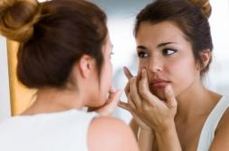 Grossesse : l'ANSM recommande l'arrêt des traitements contre l'acné