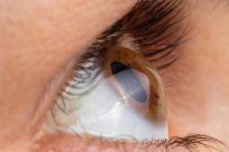Un homme de 78 ans retrouve -en partie- la vue grâce à une cornée synthétique