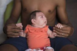 Zika : les Etats-Unis demanderaient aux femmes enceintes de limiter leurs voyages