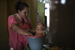 Grossesse : Zika multiplie par 50 le risque de microcéphalie