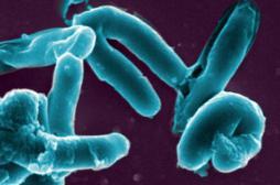 Tuberculose : l'Institut Pasteur sur la piste d'un vaccin plus efficace