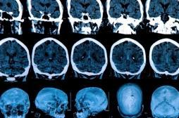 Parkinson : un score pur évaluer le risque de déclin cognitif