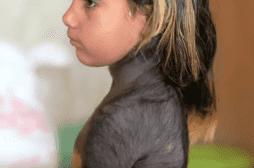 A 4 ans, Haroua souffre d'une forme rare d'une maladie de peau qui couvre en partie son corps de poils